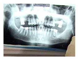 radiografias_1