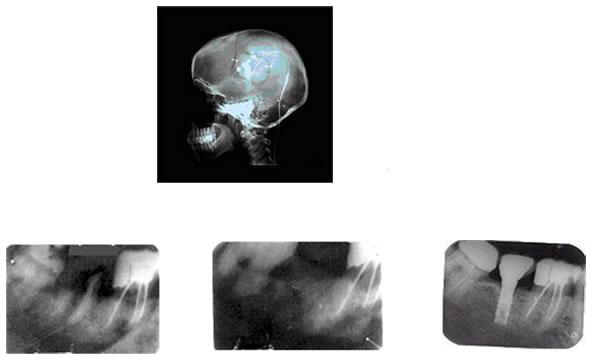 radiografias_2
